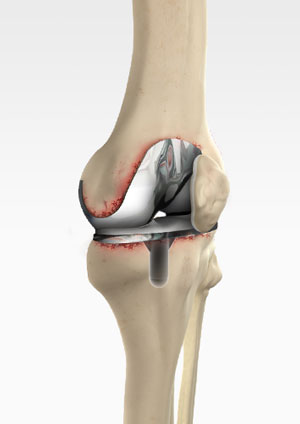 Revision Knee Replacement RKR