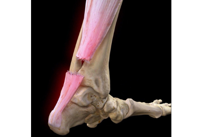 Achilles Tendon- Repair