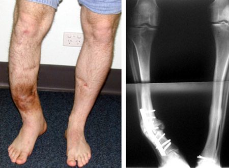 Post - Traumatic Bone Deformities