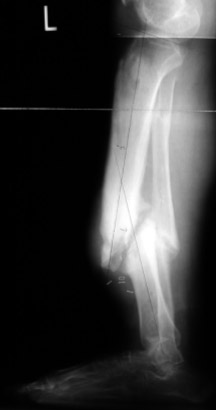 Non-Healing Fractures (nonunions) and Malunions